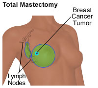 Illustration of a total mastectomy