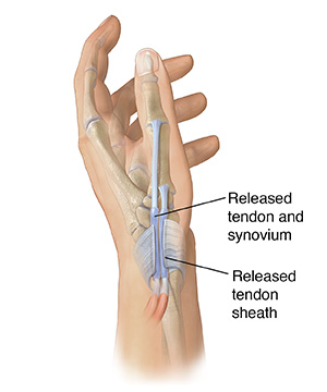 Side view of hand showing tendon sheath cut over tendons in base of thumb to repair DeQuervain's tenosynovitis.