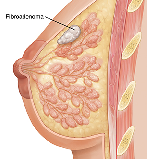 Side view cross section of breast showing fibroadenoma.