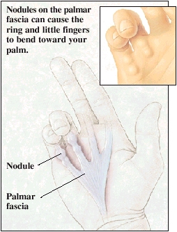 Palm of hand showing palmar fascia with Dupuytren's Contracture. Ring and little fingers are bent. Nodules are at base of ring and little fingers. Closeup of palm of hand showing nodules under skin of little and ring fingers.