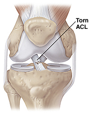 Front view of knee joint showing muscles, bones, and ligaments with partial rip of the anterior cruciate ligament.