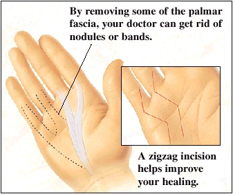 Image of hand with some of the palmar fascia removed to rid hand of nodules or bands. Inset shows a zigzag incision.