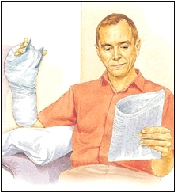Man elevating hand in cast