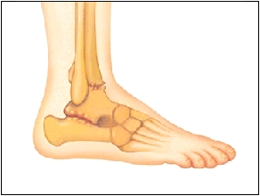 Arthritic rear or midfoot joints