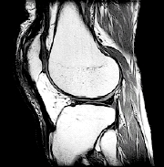 MRI scan of the knee.