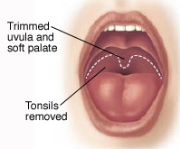 Illustration showing that tonsils are removed and the uvula and soft palate are trimmed during UPPP.