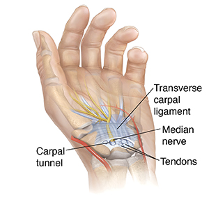 steps fight your carpal tunnel syndrome
