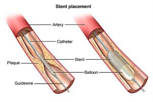 Stent placement