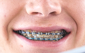 Closeup of teeth with braces.