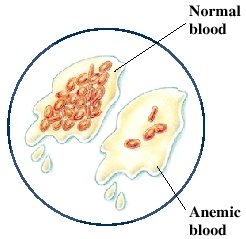 Image of normal and anemic cells