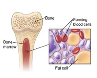 Illustration of bone marrow