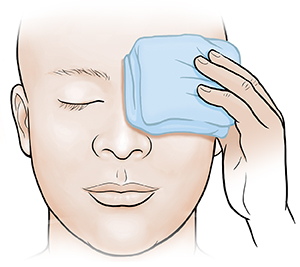 Adult holding cold compress on eye.