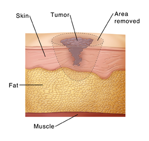 Skin layers with melanoma showing incision lines to remove tumor.